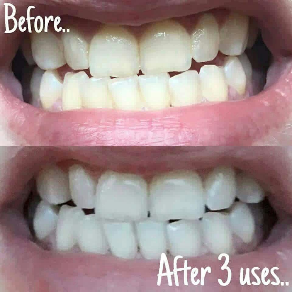 Whitening Toothpaste No Peroxide No Abrasive No Bleach Whiter
