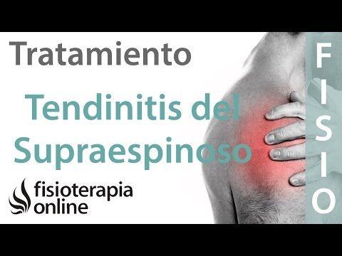 tratamiento terapeutico para tendinitis del manguito rotador