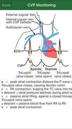 CVP monitoring More | Nursing School and Education | Cardiac nursing