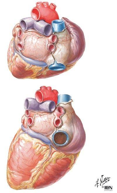 The Heart by Dr. Frank H. Netter Watercolor 1930s http://ift.tt ...