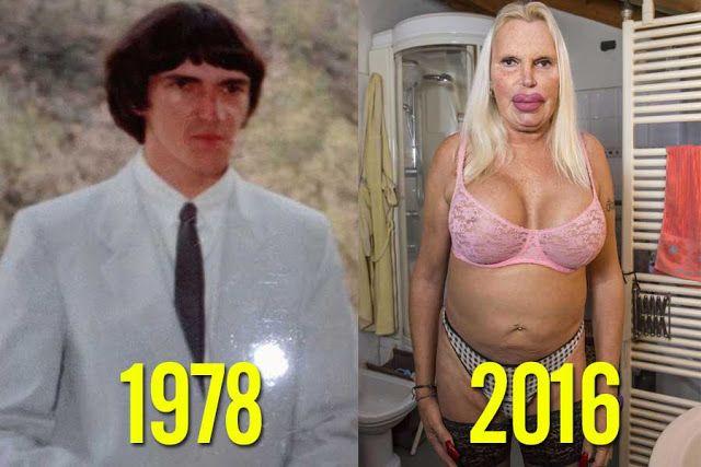 11 personas antes y después de la cirugía. El #8 se puso el PЄNЄ de su papá