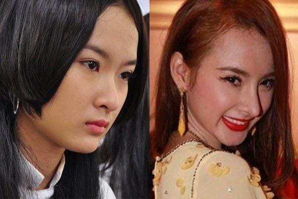 Angela Phương Trinh phải trải qua quá trình thẩm mỹ gian nan mới trở thành mỹ nhân dao kéo đẹp nhất Vbiz
