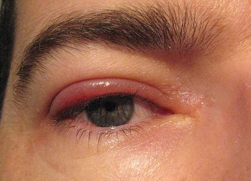 Colloidal silver blepharitis