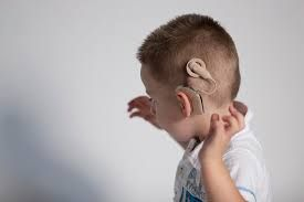 Cochlear Implant Resources