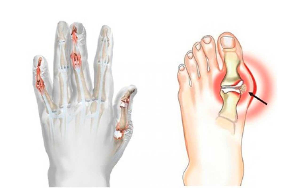 Ихтиол при артрите