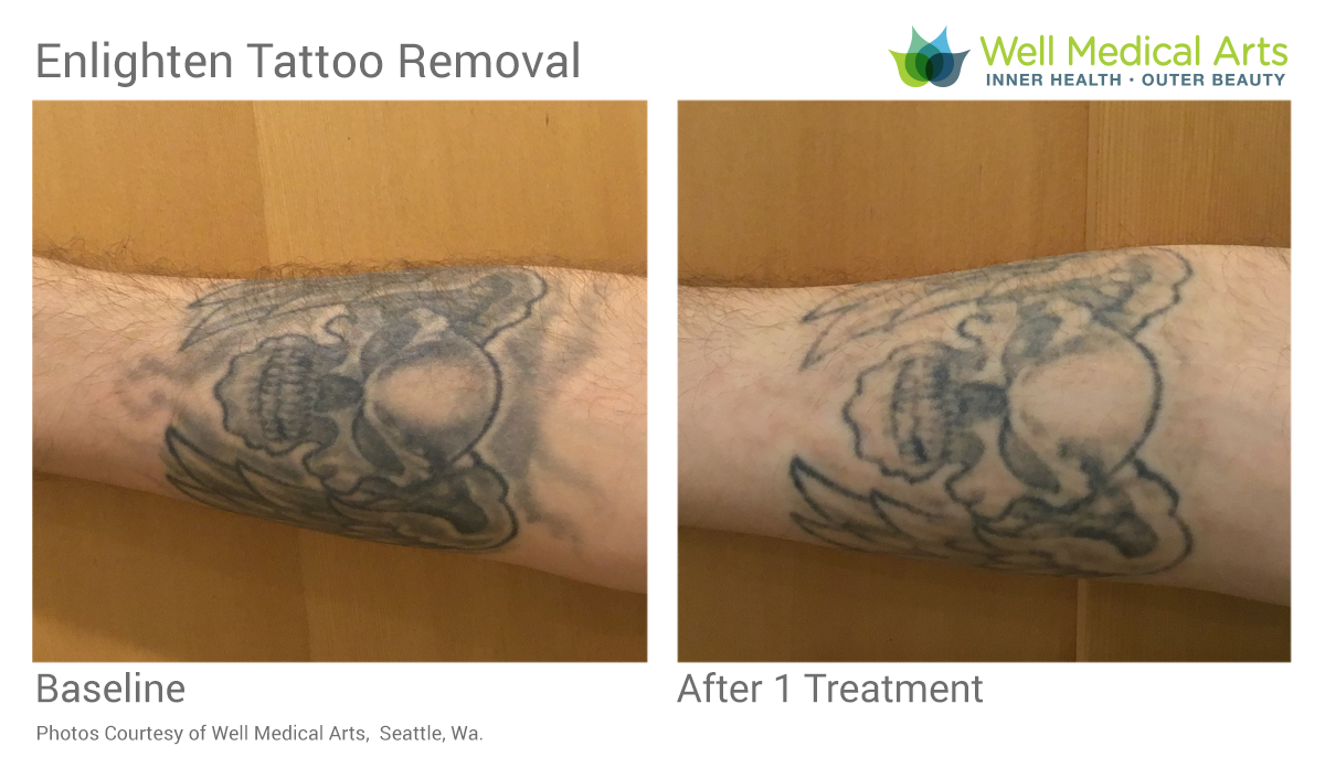 Pin by Well Medical Arts on Tattoo Removal Tattoo