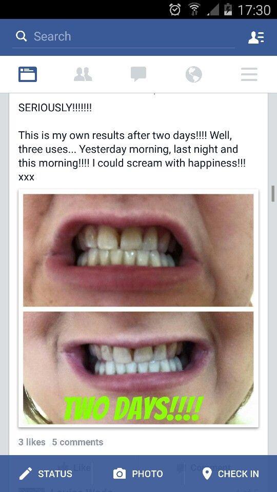 Brilliant white teeth!