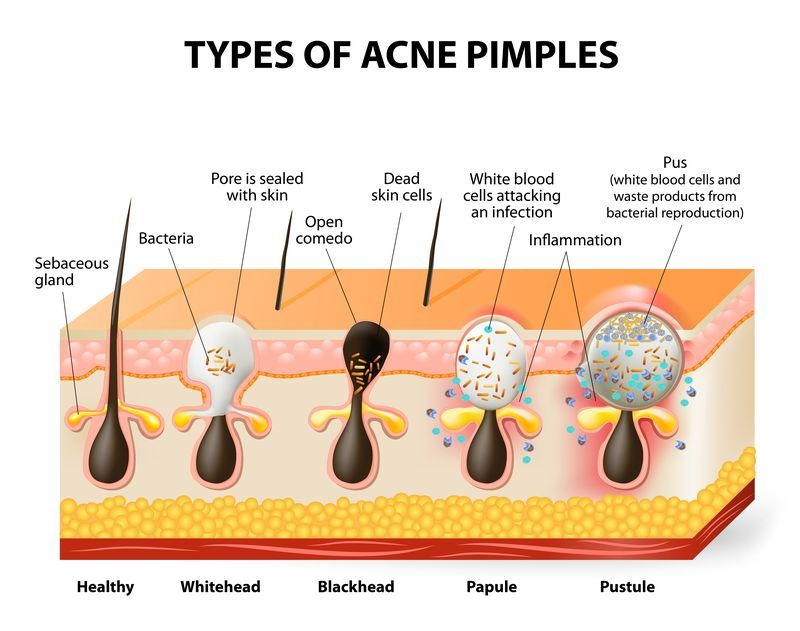 Image result for acne type diagram