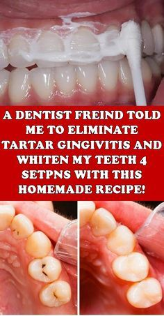 A DENTIST FRIEND TOLD ME HOW TO ELIMINATE TARTAR, GINGIVITIS AND WHITEN MY TEETH IN 4 STEPS WITH THI...