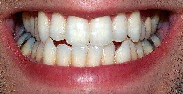 Receita De Clareamento Dental Caseiro Que Funciona Mesmo Cura Pela