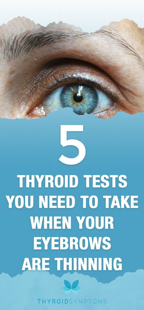5 Thyroid Tests You Need To Take When Your Eyebrows Are Thinning