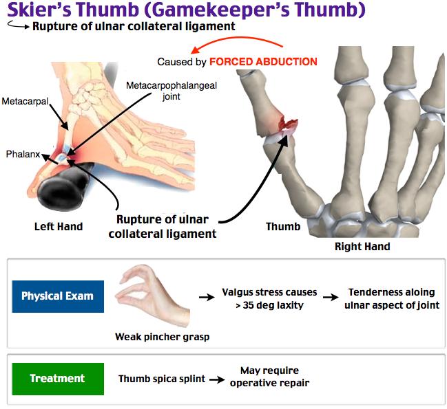 Skiers Thumb Gamekeepers Thumb Ortho Thumb Spica Splint Dc