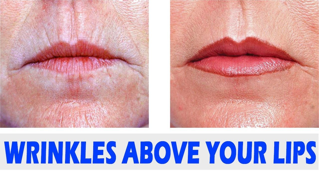1a84c026140ada38bdfefd69d3f5a369 - How To Get Rid Of Lines On The Lips