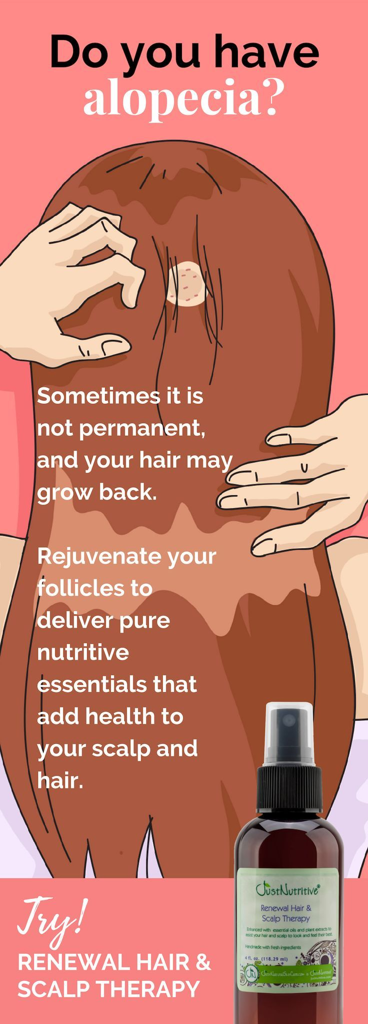 Pin by Alexis on Projects to try Alopecia, Thinning hair