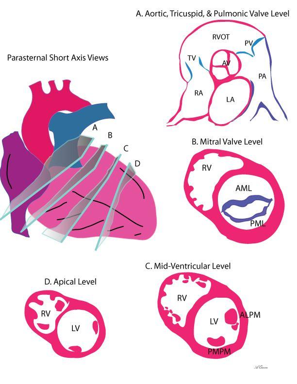 Transthoracic Echo   imaging   Pinterest   Cardiología, Medicina y ...