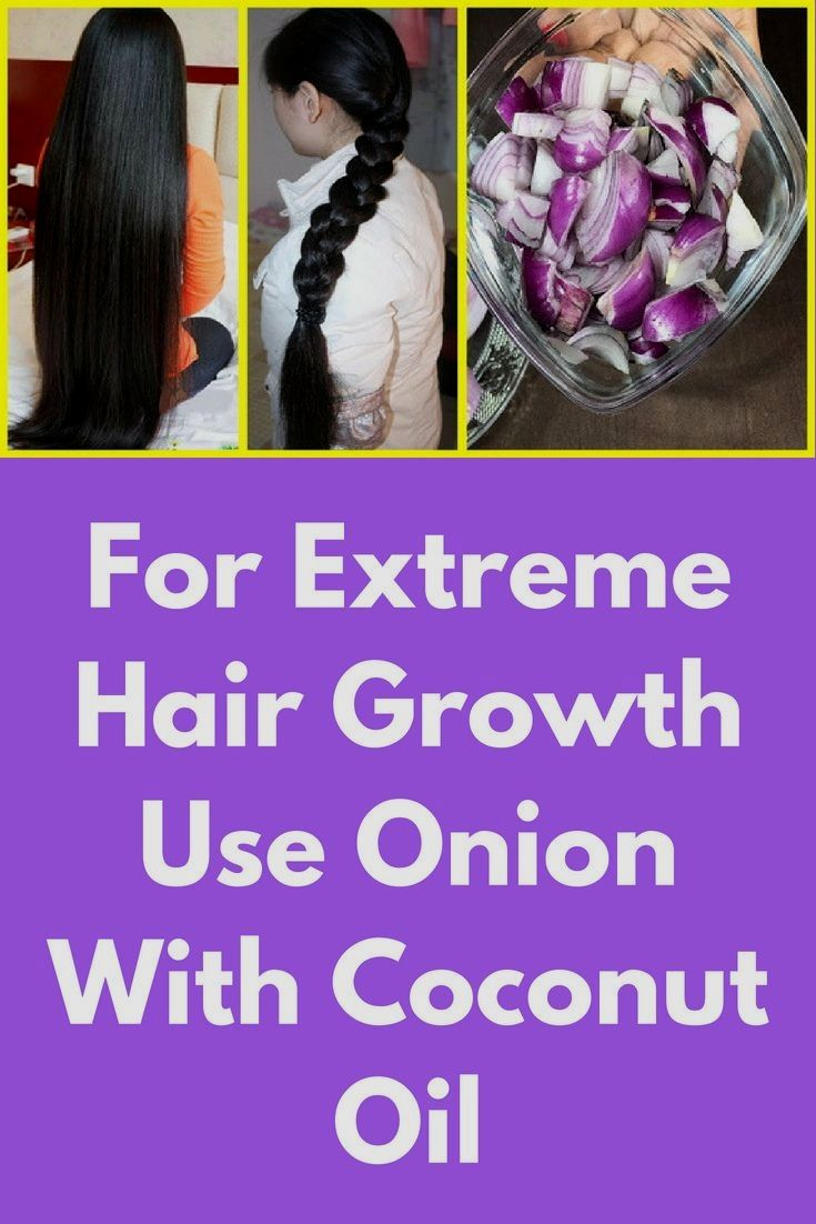 For Extreme Hair Growth Use Onion With Coconut Oil In this