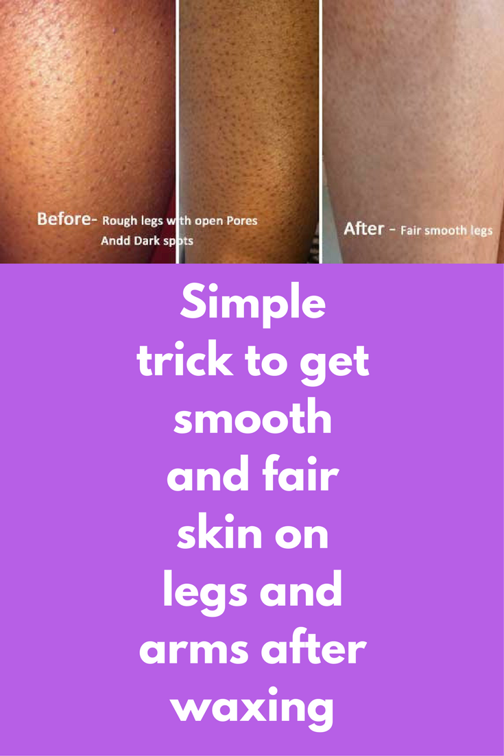 Simple Trick To Get Smooth And Fair Skin On Legs And Arms After Waxing Waxing Pulls Out The Hair From Your Skin Smooth Bumpy Skin Rough Bumpy Skin Waxing Legs