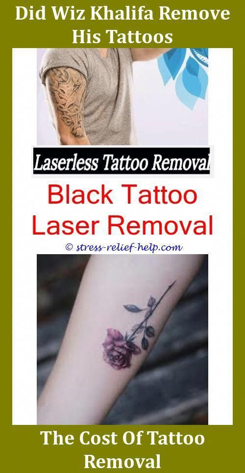 Tattoo Removal Near Me How Bad Does Tattoo Removal Hurt ...