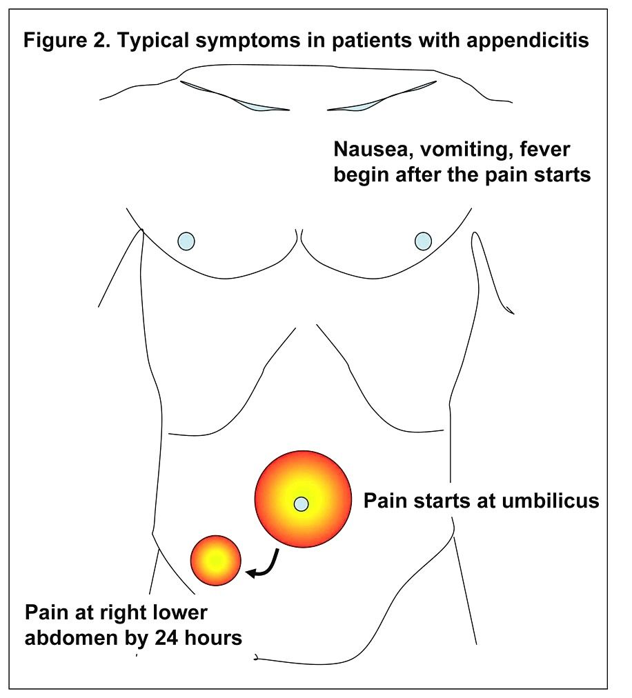 What you know about appendicitis? | RN: real nurse | Pinterest