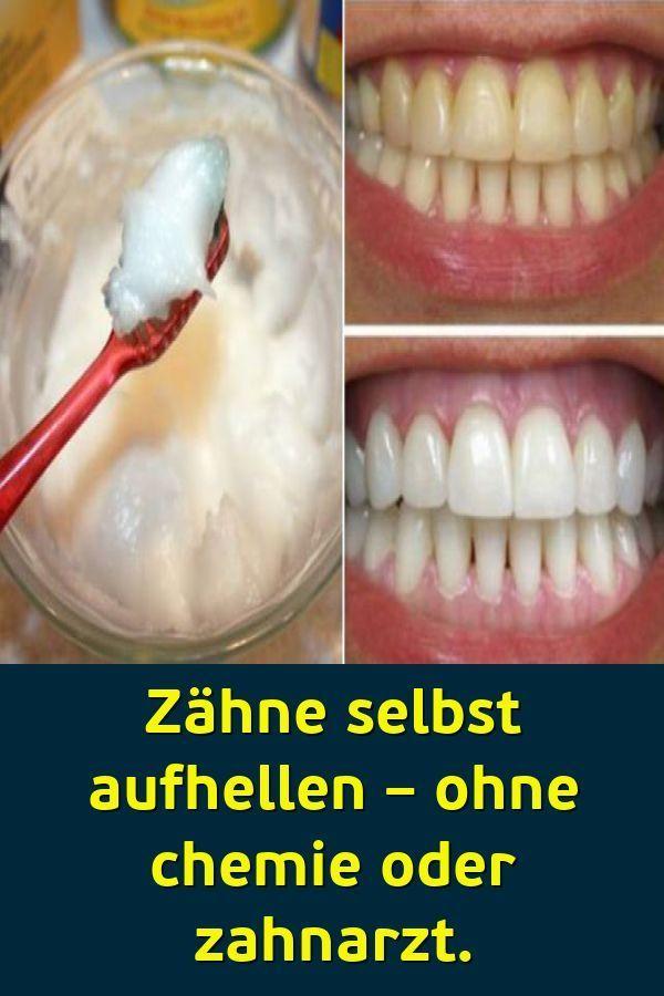 Gelber Zahnbelag