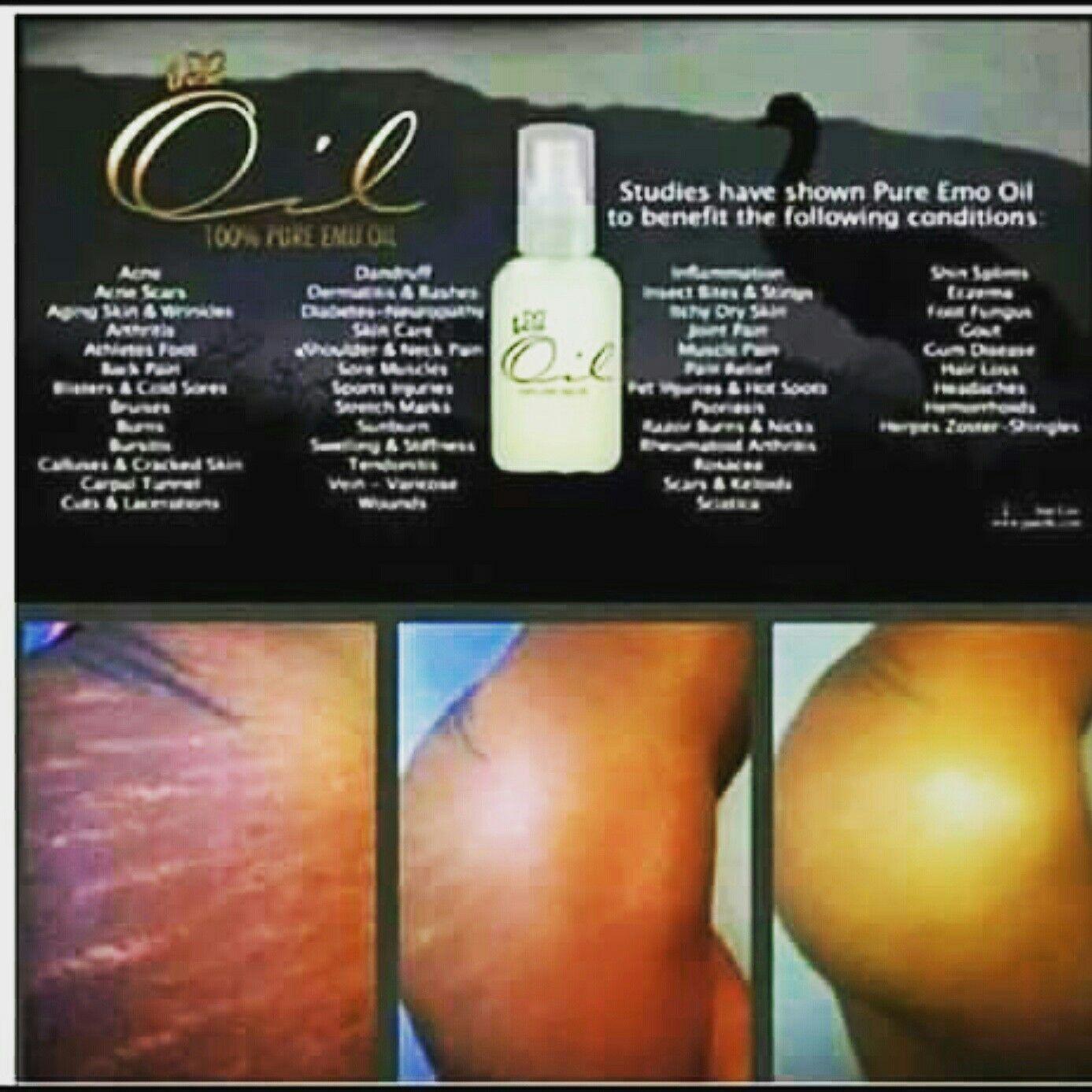 Iaso Emu oil: Heals burns, scars, acnes, stretch marks, eczema