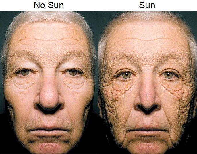Effects of sun on skin