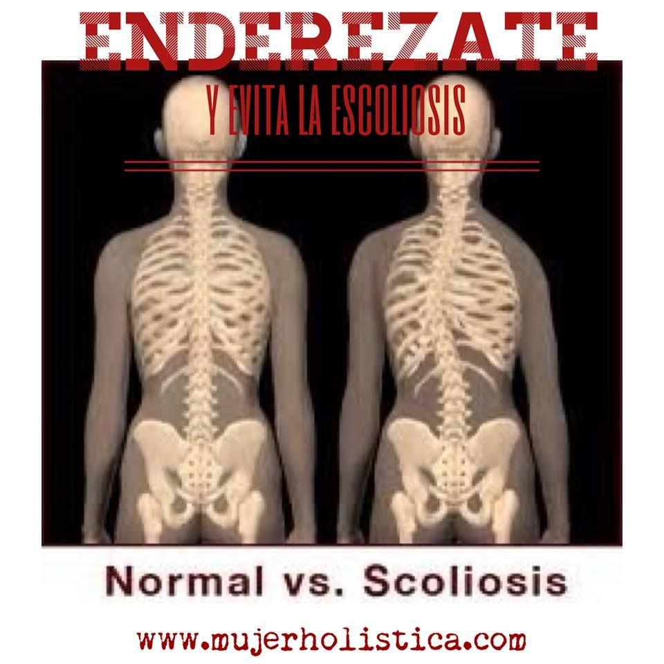 La escoliosis es una desviación de la columna que puede ocurrir a ...