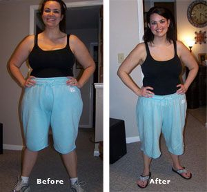 Weight loss surgery to lose 80 pounds