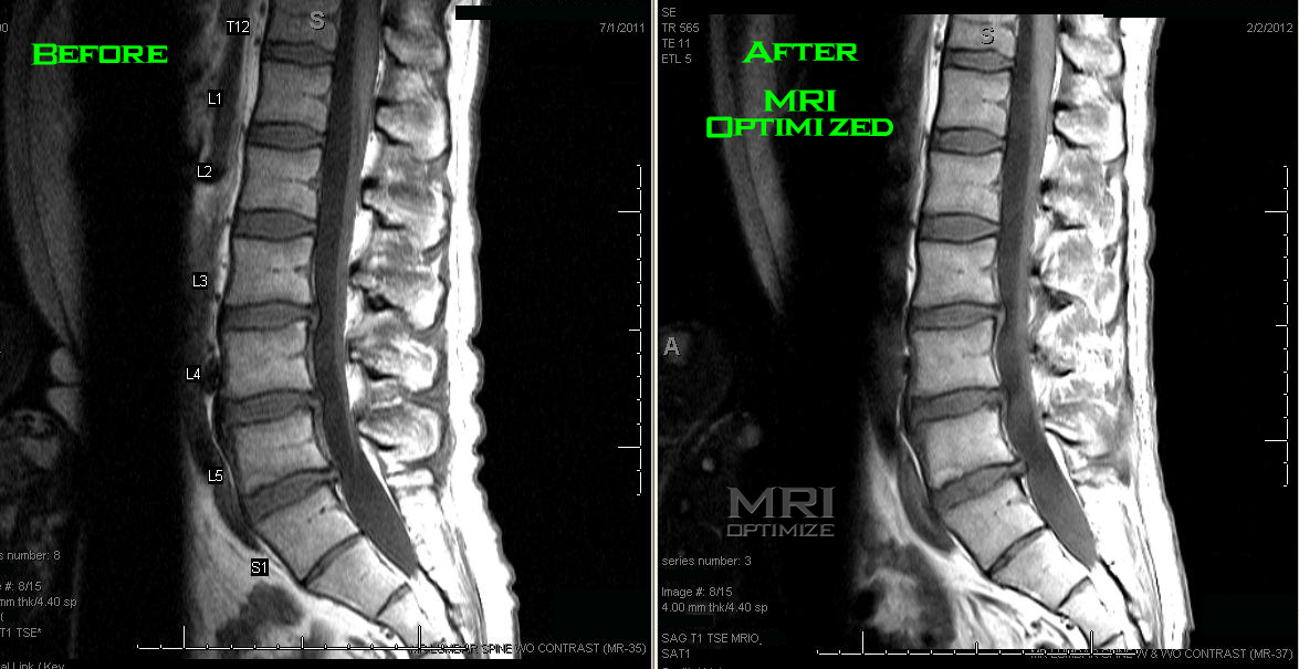 Mri Lumbar Spine Sagittal T1 Weighted Sequence Shows One Slice Of A