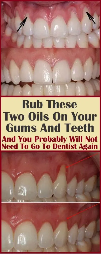 How To Get Rid Of Gingivitis In 1 Day