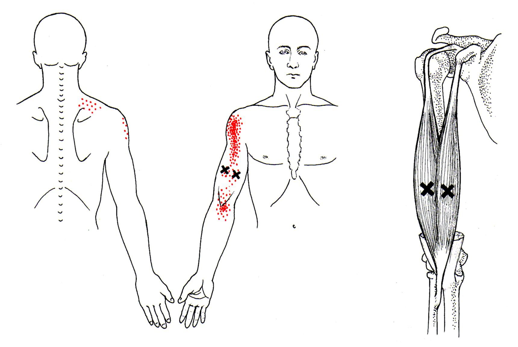 Oberarmmuskel | The Trigger Point & Referred Pain Guide - Heilung ...