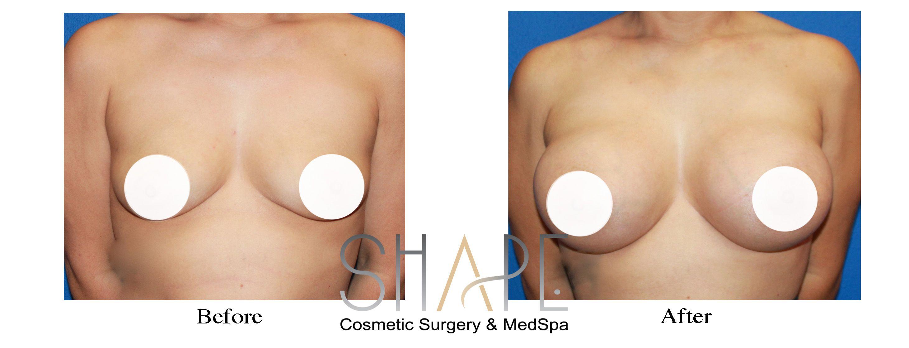 augmentation spokane wa breast