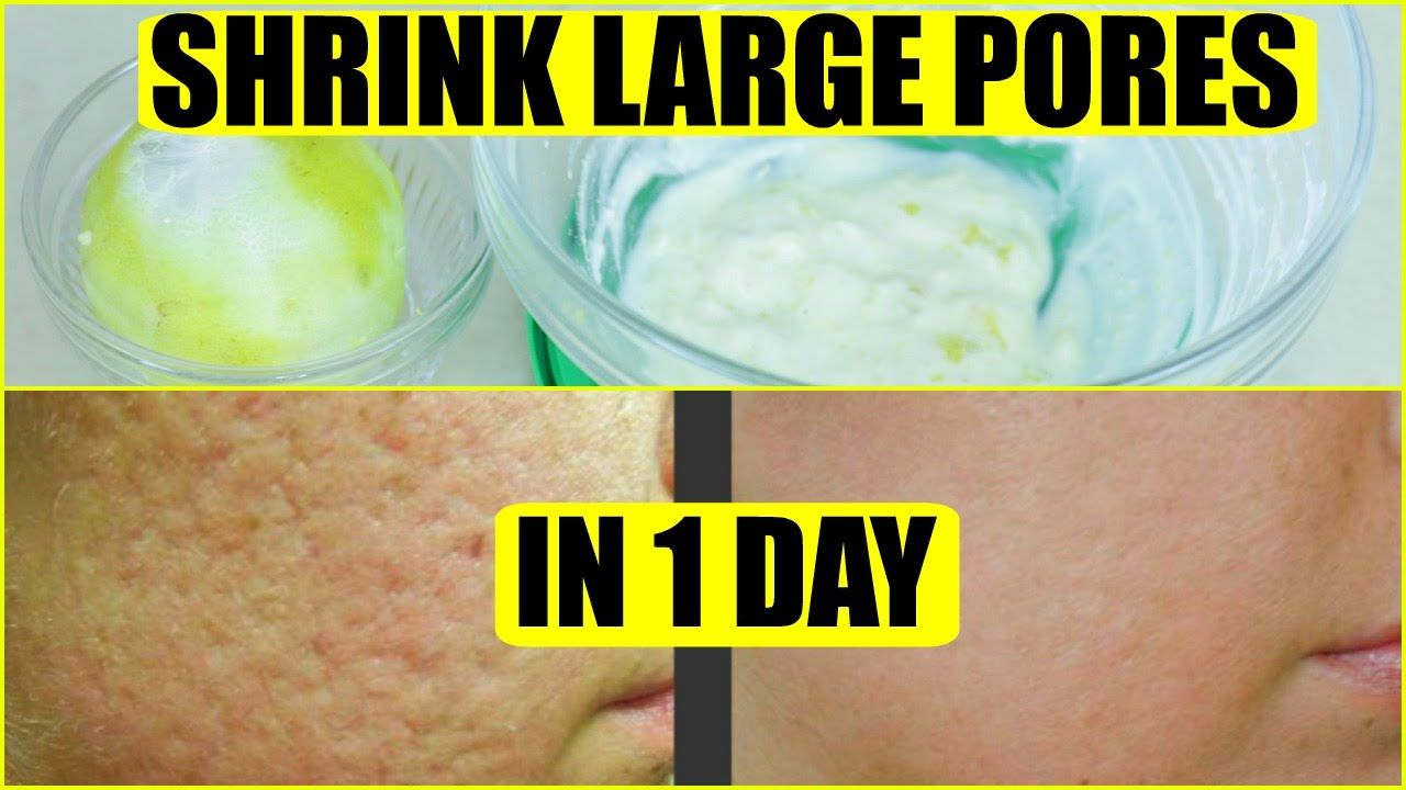 How to get rid of large pores in 1 day superprincessjo