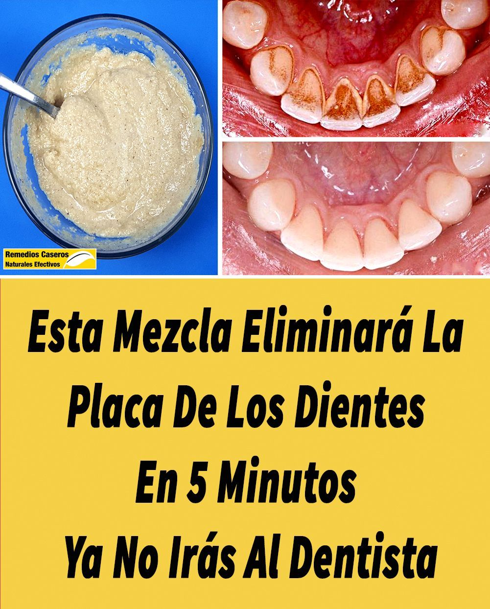 Cómo Eliminar La Placa Dental Comoeliminarlaplacadental Es Uno De Los Problemas Dentales Más Frecuentes Hoy En Día Health And Beauty Natural Remedies Remedies