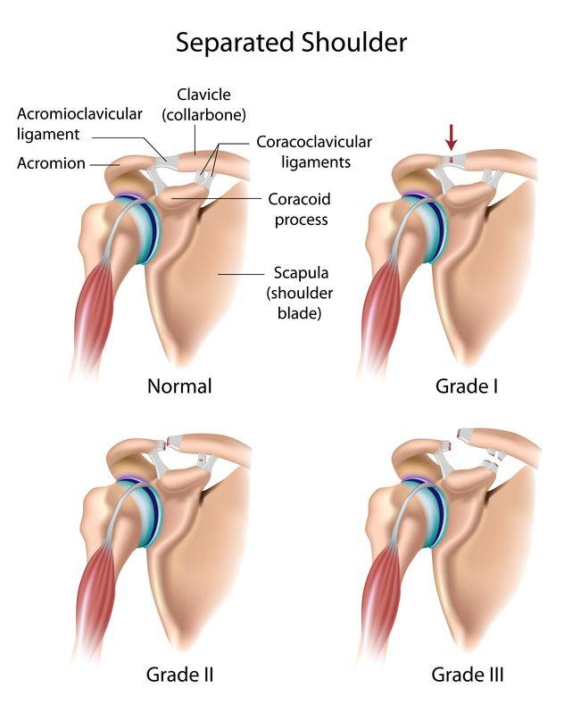 Shoulder Separation (AC Joint Sprain, AC Joint Separation) | Patient ...