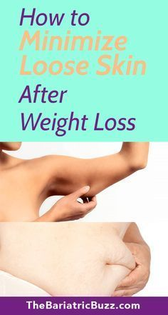 Minimize Loose Skin after WLS with these tips! Bariatric | Weight Loss | WLS | Gastric Bypass | RNY...