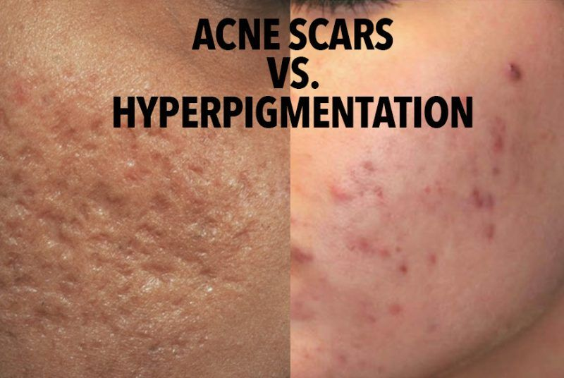 1ab7b78c9ac4978b313860dffdf98ebe - How To Get Rid Of Post Inflammatory Hyperpigmentation Naturally