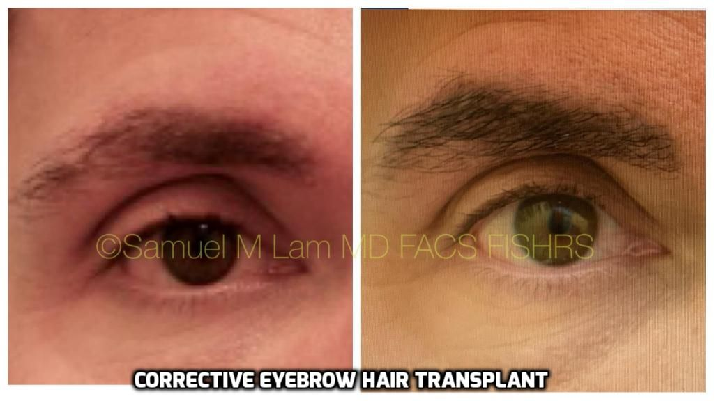 This Patient Underwent A Prior Eyebrow Hair Transplant That Was