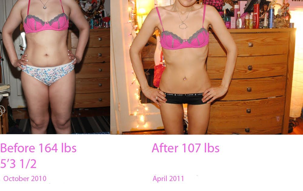pro ana - Google Search | Before & After- Be Inspired ...