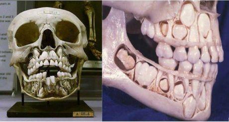 Child S Skull Before Losing Teeth Childs Skull Baby Teeth Skull