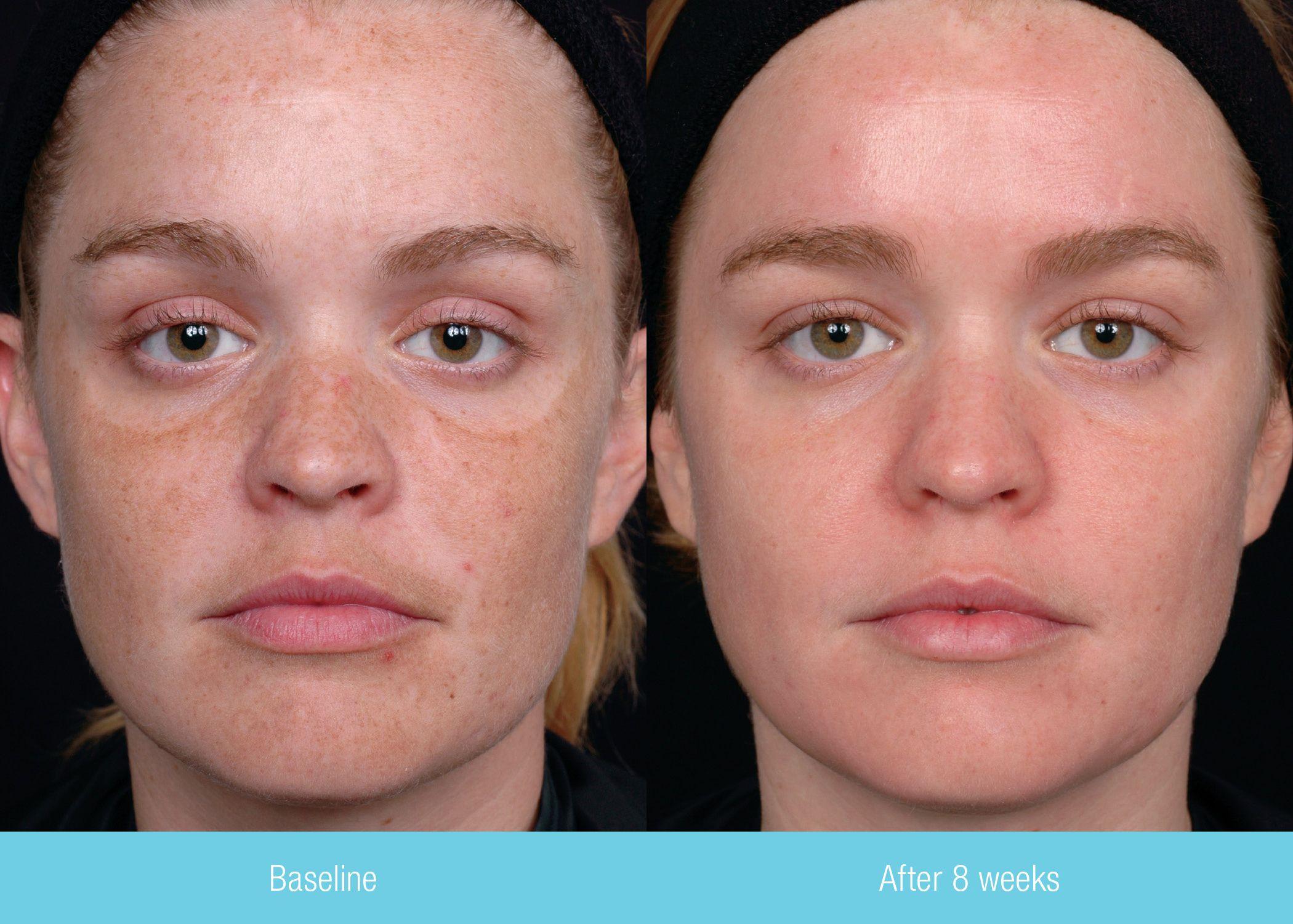 swiss skin roller resultat