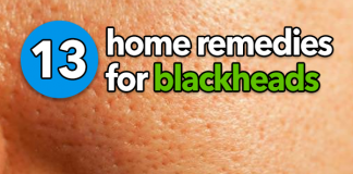 13 Natural Home Remedies to Get Rid of Blackheads #home #remedies #blackheads #acne #pimples #clogged #pores