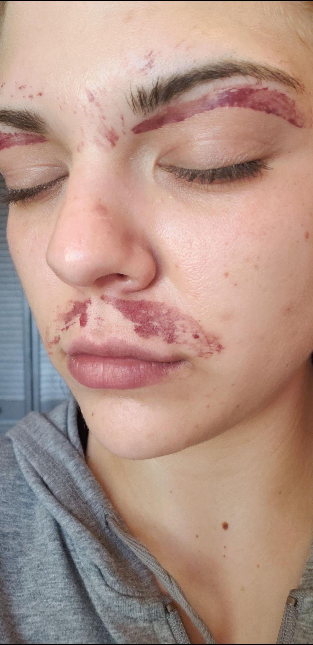 Pin by Micah Holmes on Skin in 2020 Lip waxing, Peeling
