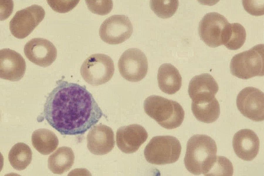 Sunday Hematology Quiz - Can you identify these blood cells