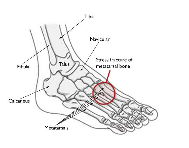 Stress Fractures Of The Foot And Ankle Orthoinfo Stress Fracture Fractures Metatarsal Fracture