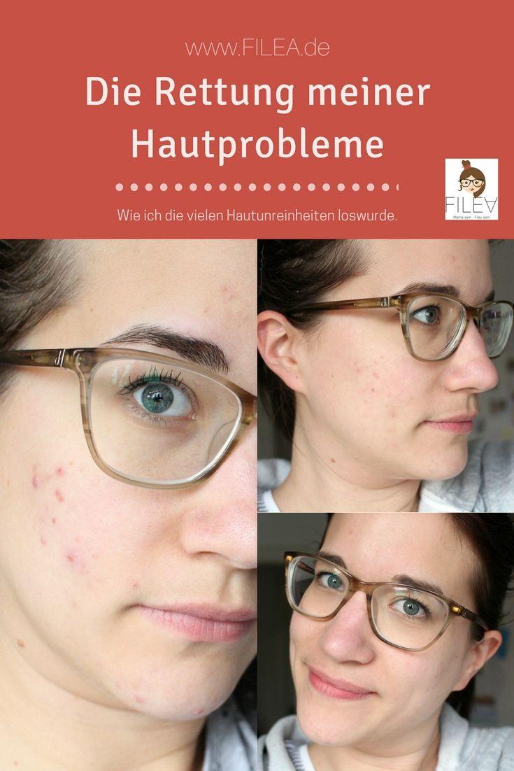 Meine Geschichte // Die Rettung meiner Hautprobleme #hairhealth