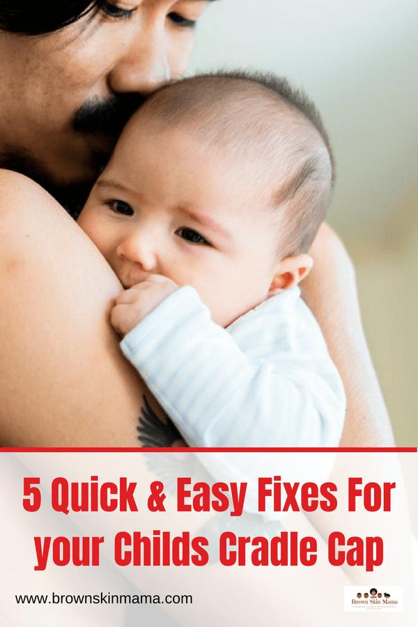 446d06414ef Natural   Effective Ways To Treat Cradle Cap