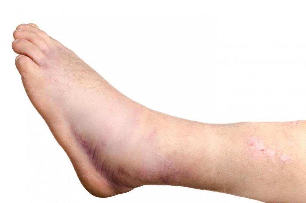 como curar as pernas inchadas após o vôo