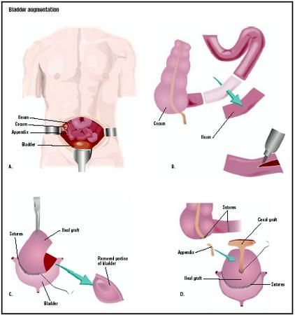 6 Complications Of Bladder Augmentation In Spinabifida