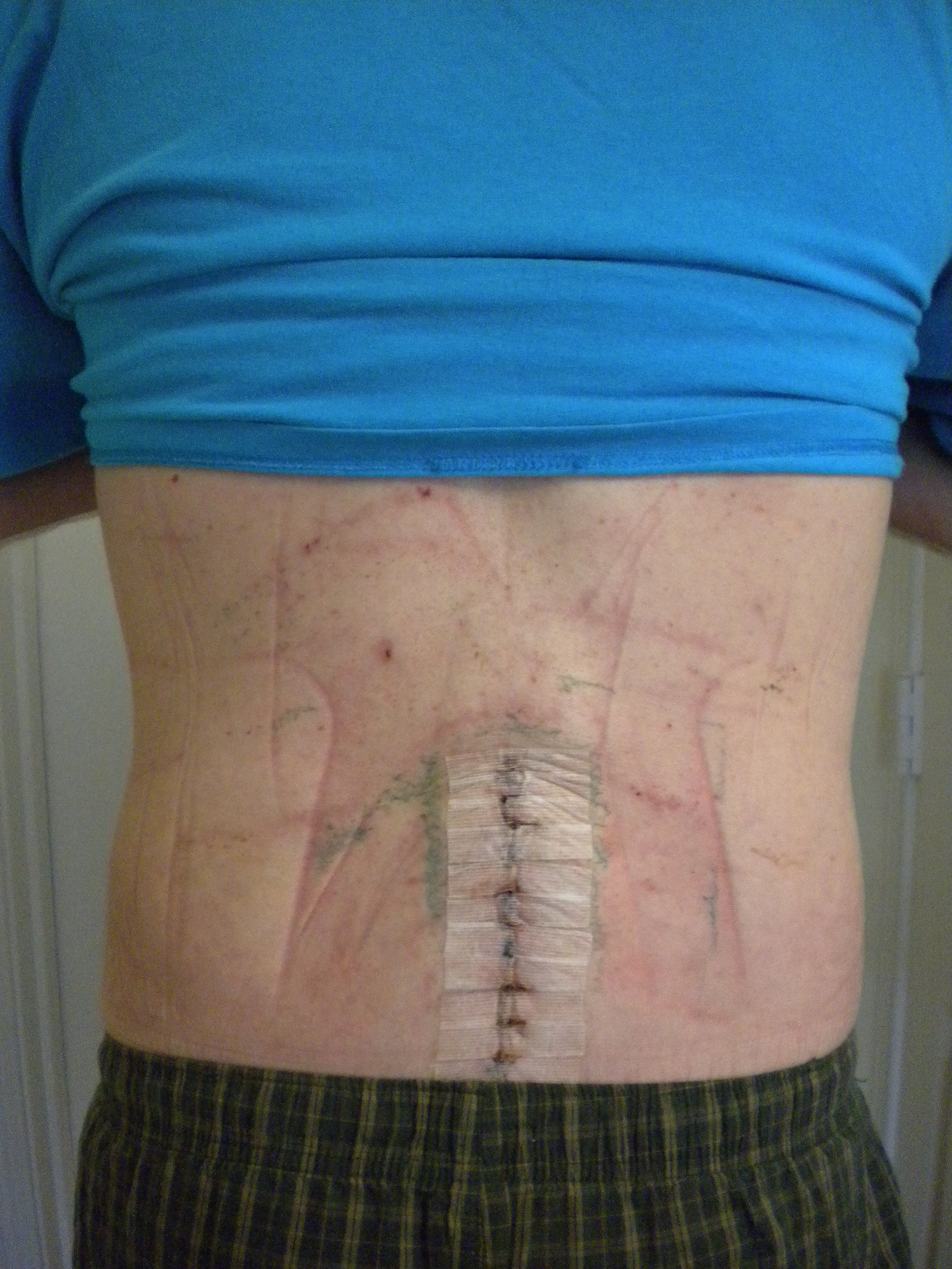 Spinal Fusion blog ~ Also looks like my back, post - fusion